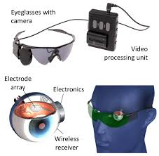 Working of Argus-II Retinal Prosthesis System