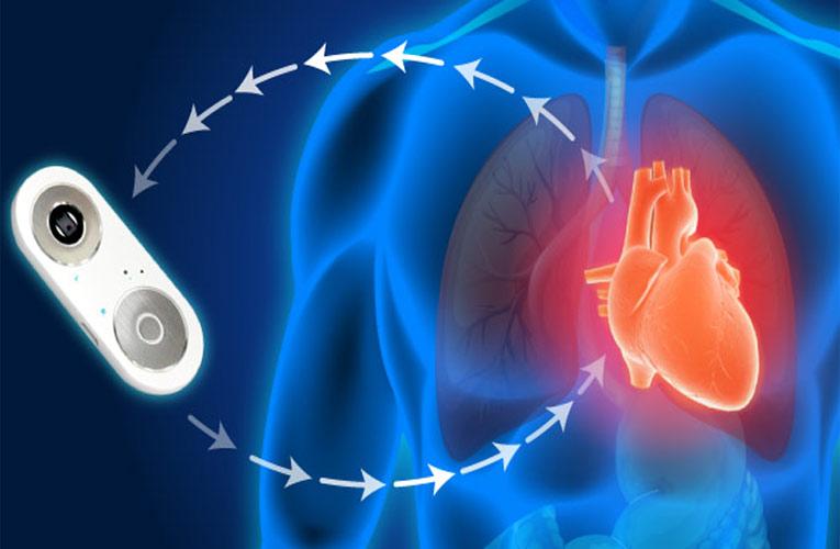 iCare Cardiovascular Tester