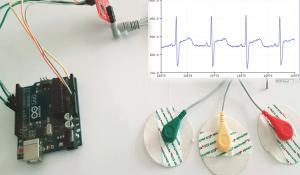 AD8232 ECG sensor with Arduino