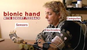 Bionic Hand with Sense of Touch